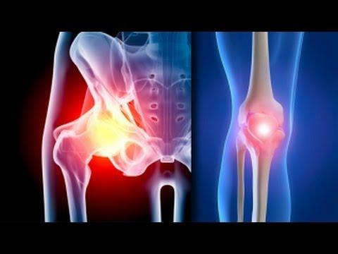 Iată un tratament pentru artroză